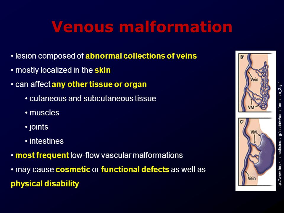 Venous malformation lesion composed of abnormal collections of veins