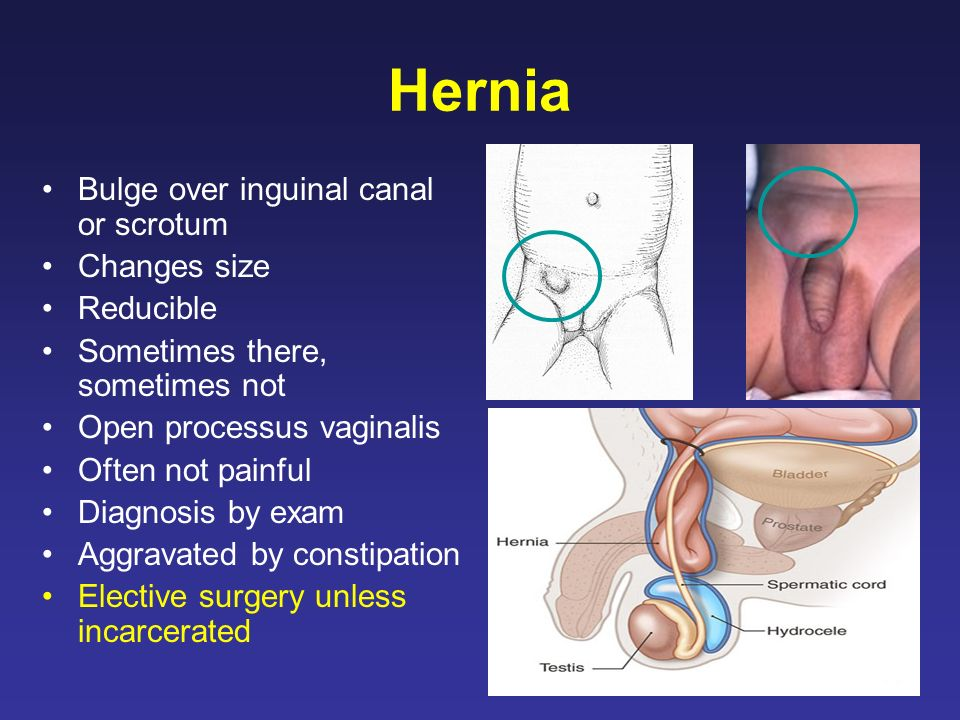 Hernia Bulge over inguinal canal or scrotum Changes size Reducible