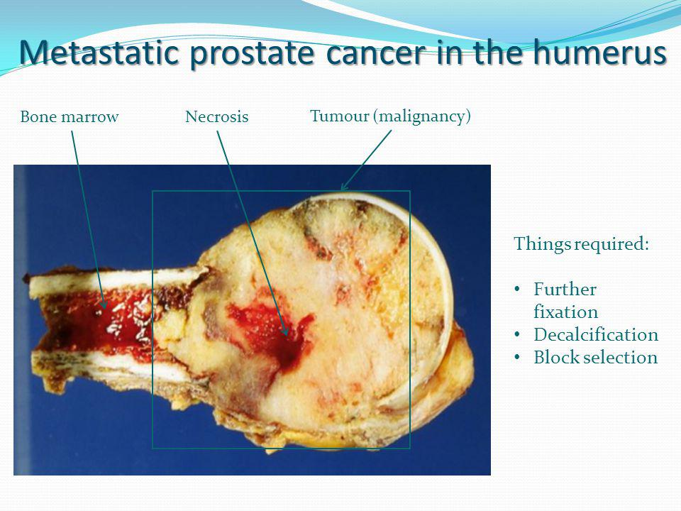 Metastatic prostate cancer in the humerus