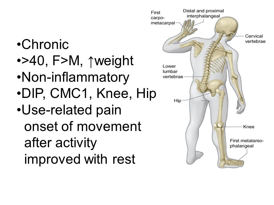 Chronic >40, F>M, ↑weight. Non-inflammatory. DIP, CMC1, Knee, Hip. Use-related pain. onset of movement.
