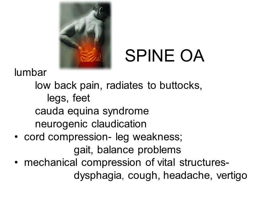 SPINE OA lumbar low back pain, radiates to buttocks, legs, feet