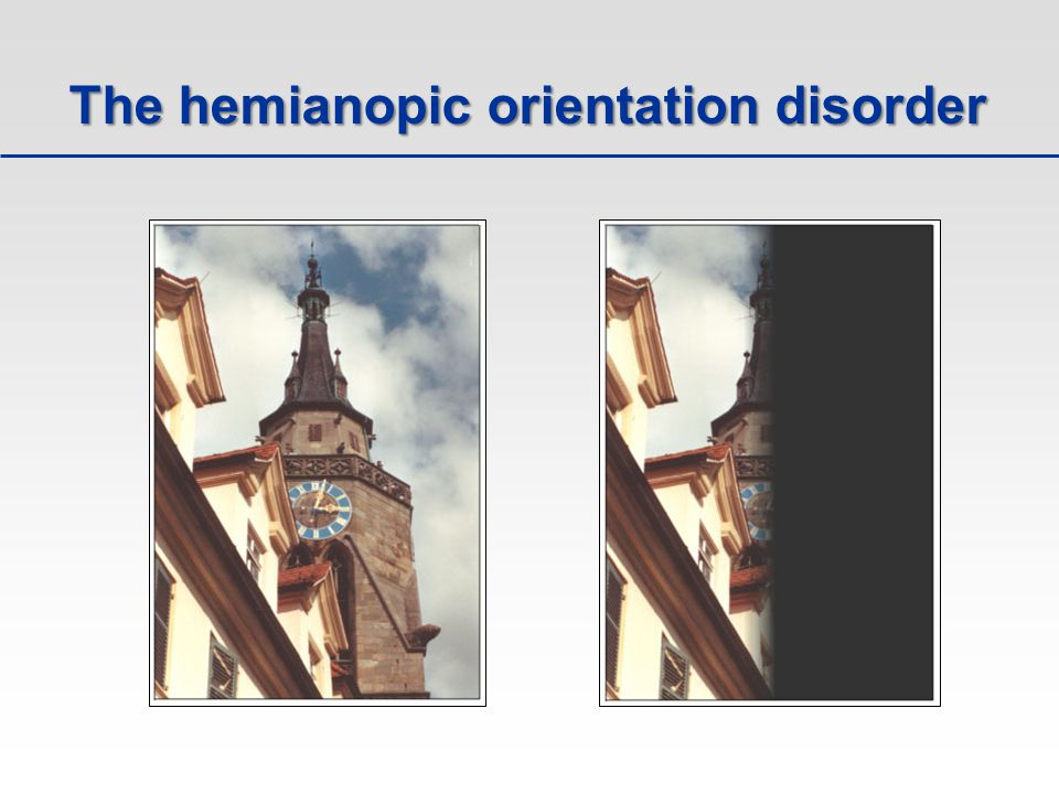 The hemianopic orientation disorder