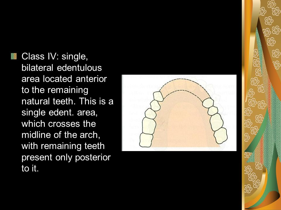 Class IV: single, bilateral edentulous area located anterior to the remaining natural teeth.