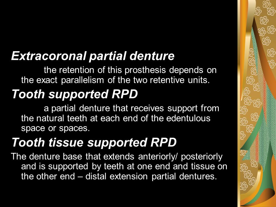 Extracoronal partial denture Tooth supported RPD