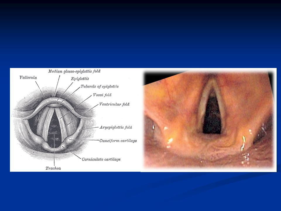 Apex of the arytenoid catilage is corniculate cartilage