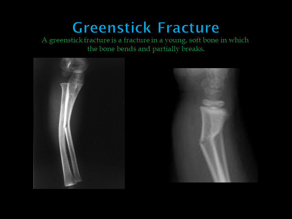 Greenstick Fracture A greenstick fracture is a fracture in a young, soft bone in which.
