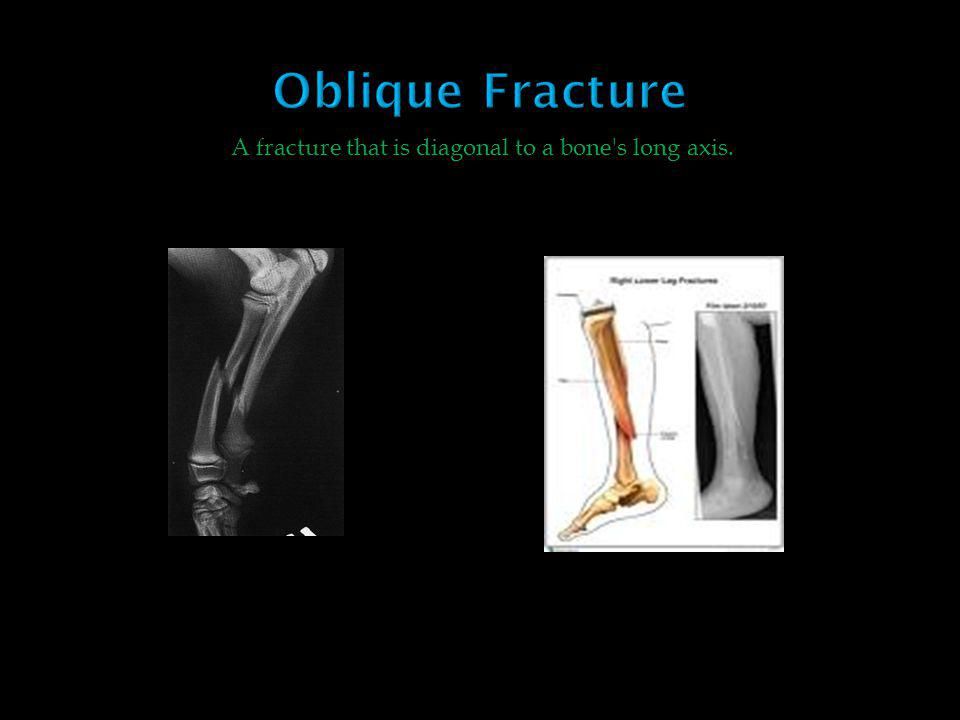 A fracture that is diagonal to a bone s long axis.