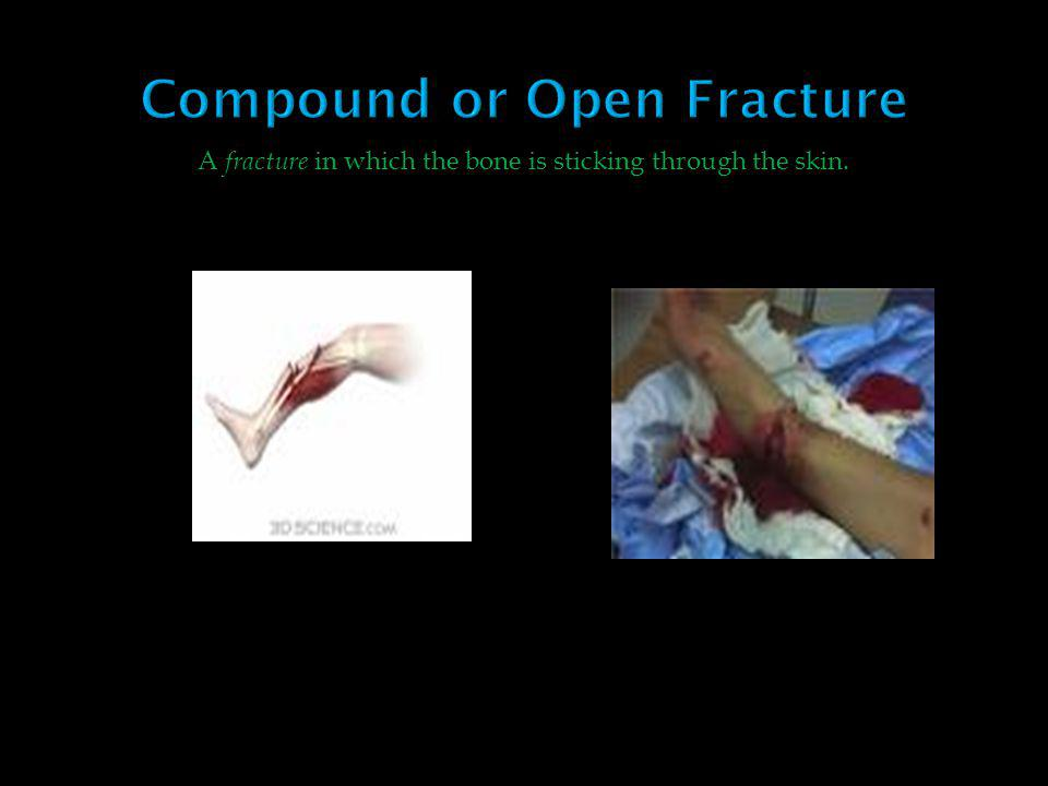 Compound or Open Fracture