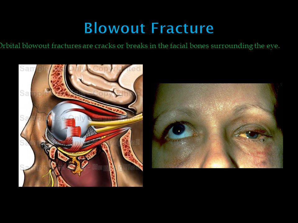 Blowout Fracture Orbital blowout fractures are cracks or breaks in the facial bones surrounding the eye.