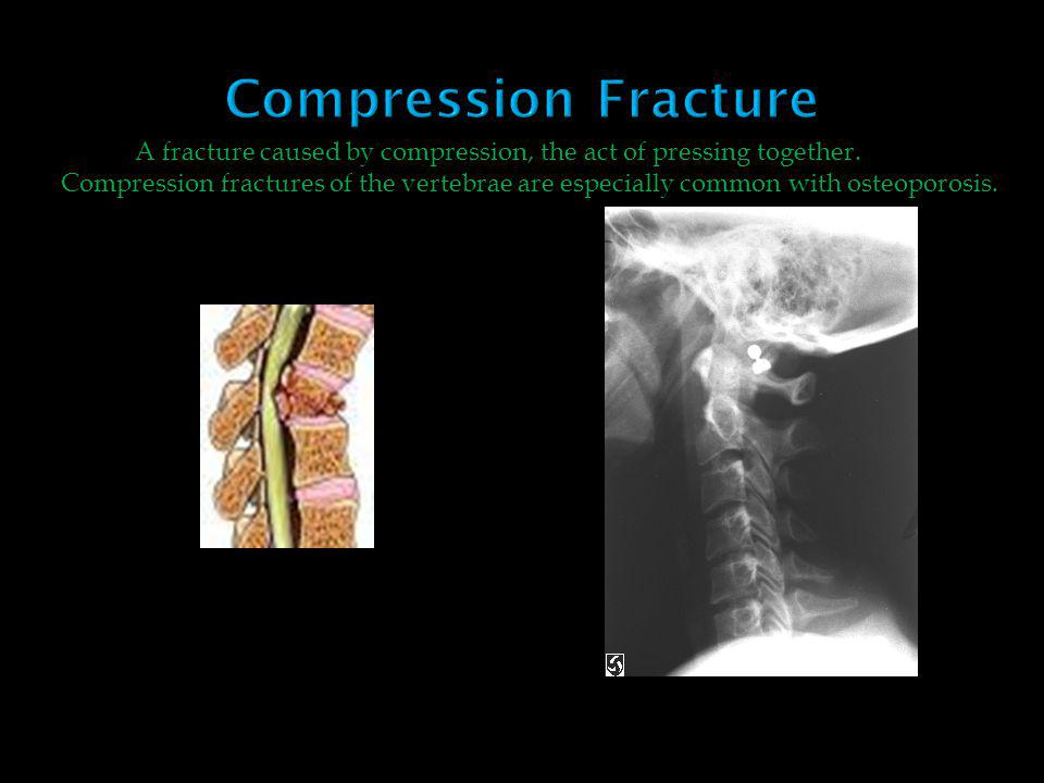 A fracture caused by compression, the act of pressing together.