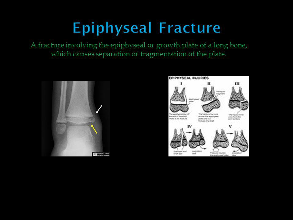 Epiphyseal Fracture A fracture involving the epiphyseal or growth plate of a long bone, which causes separation or fragmentation of the plate.