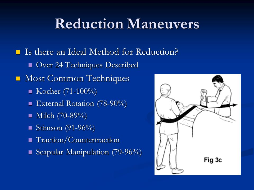 Reduction Maneuvers Is there an Ideal Method for Reduction