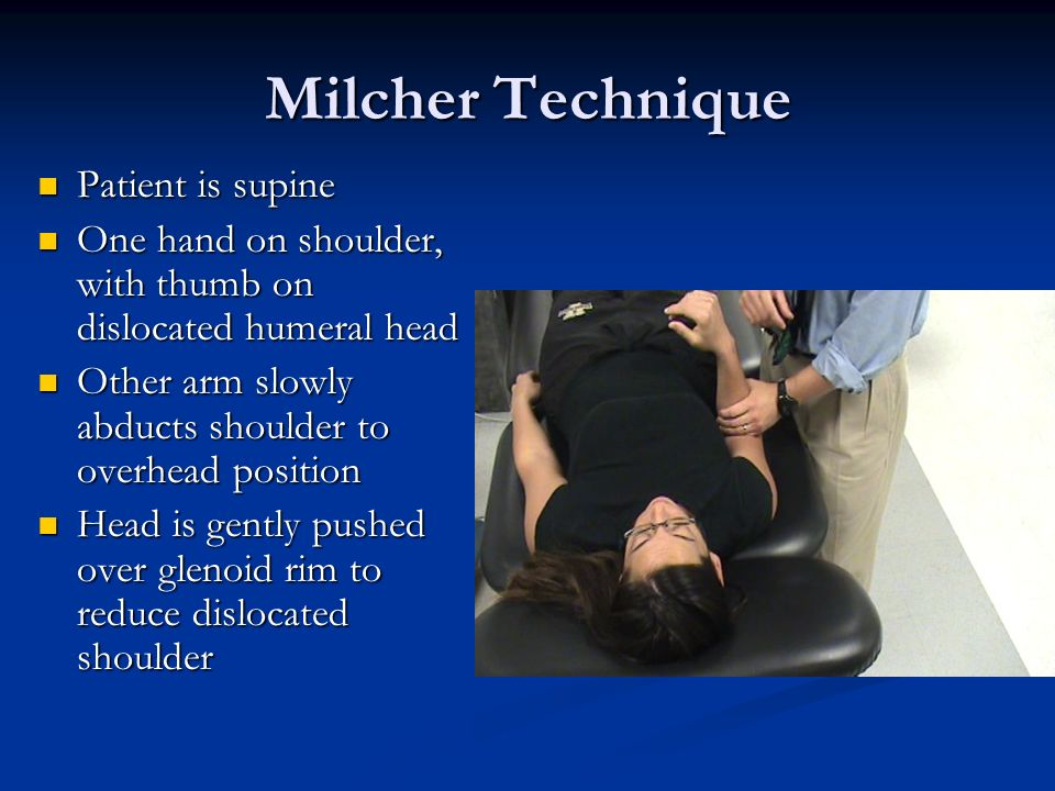 Milcher Technique Patient is supine