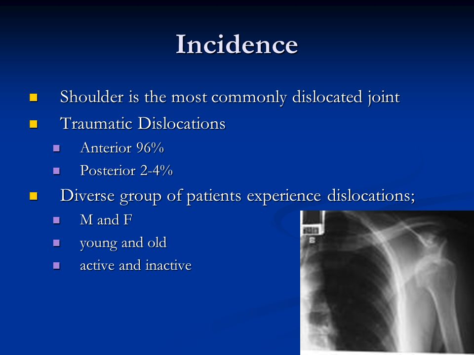 Incidence Shoulder is the most commonly dislocated joint