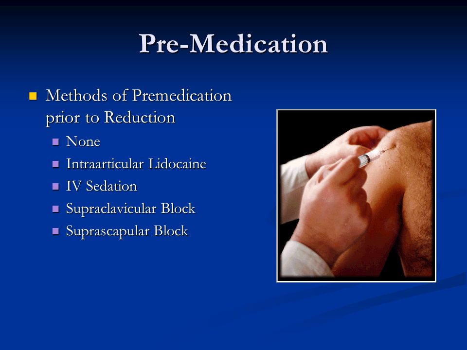 Pre-Medication Methods of Premedication prior to Reduction None