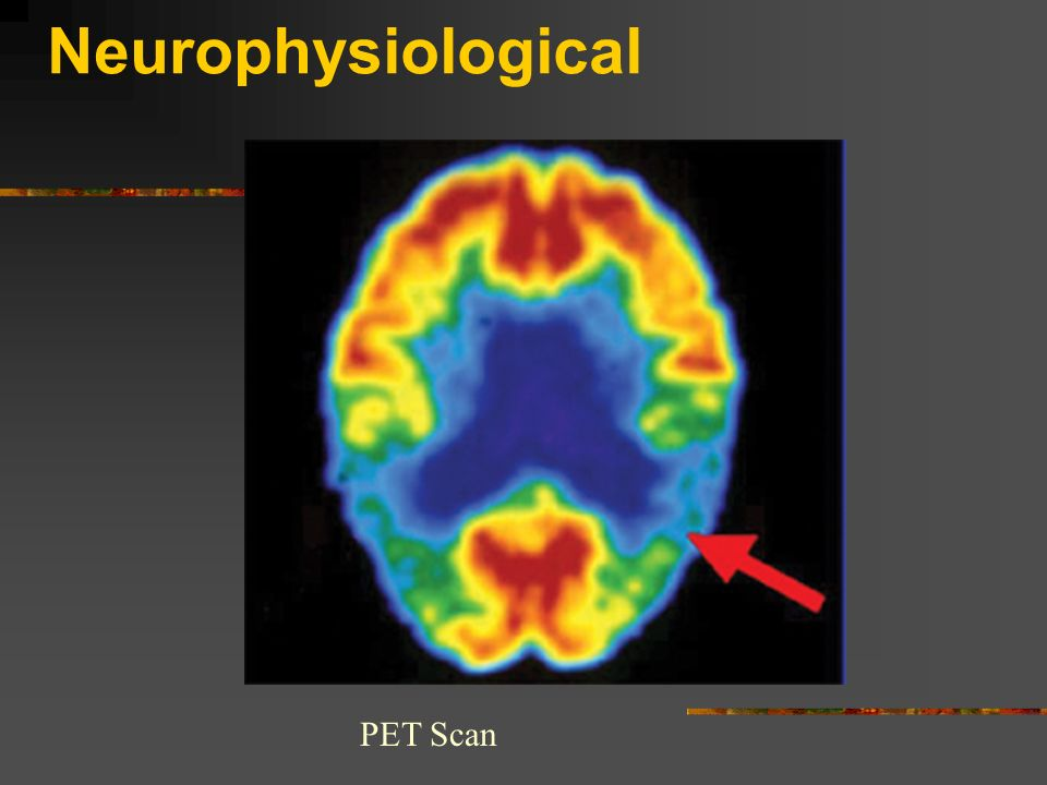 Neurophysiological PET Scan