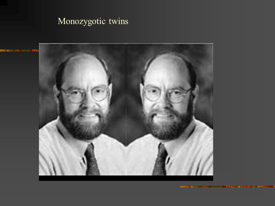 Monozygotic twins