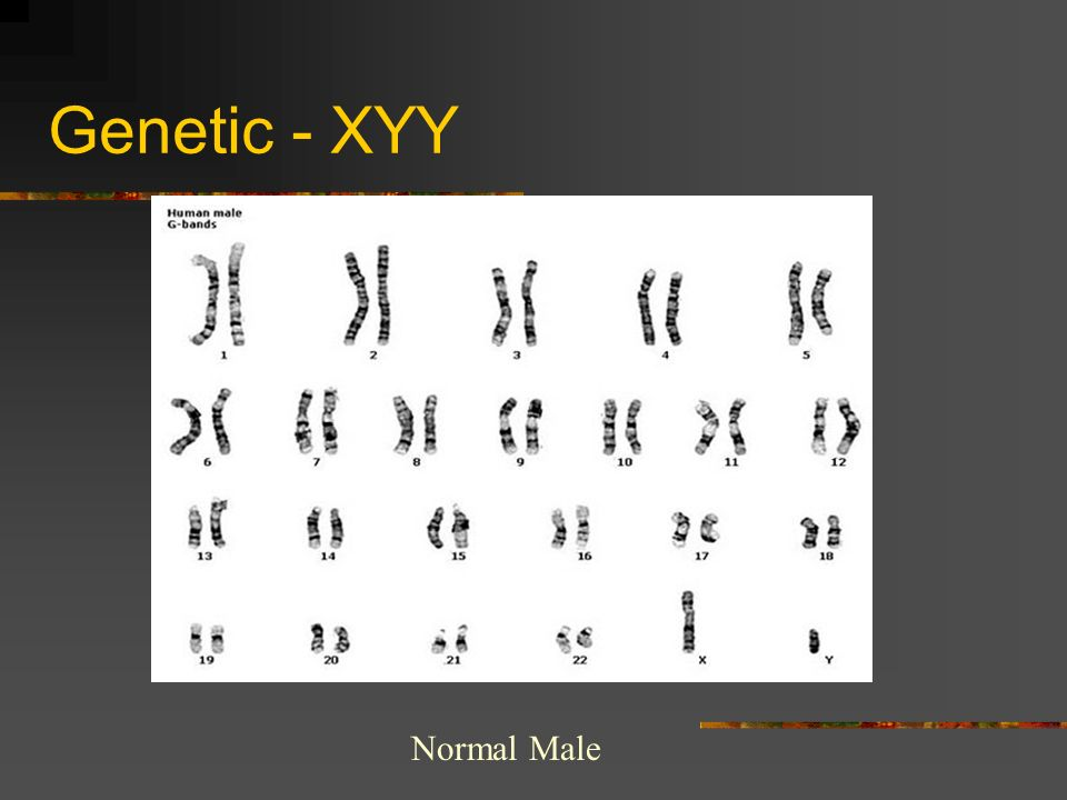 Genetic - XYY Normal Male