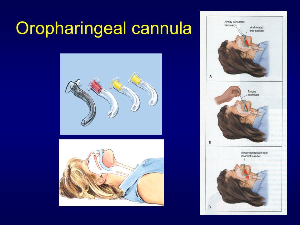 Oropharingeal cannula