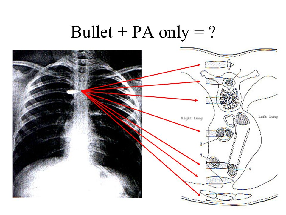 Bullet + PA only =