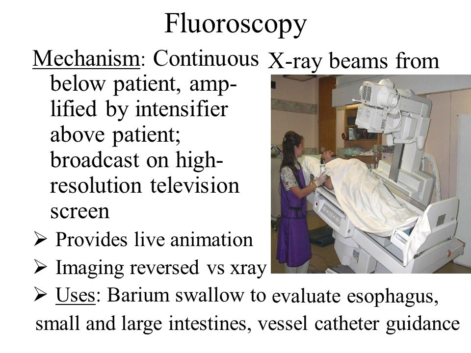Fluoroscopy Mechanism: Continuous below patient, amp- lified by intensifier above patient; broadcast on high-resolution television screen.