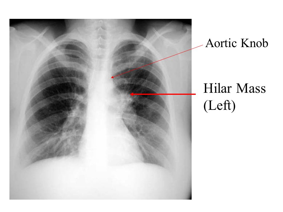 Aortic Knob Hilar Mass (Left)