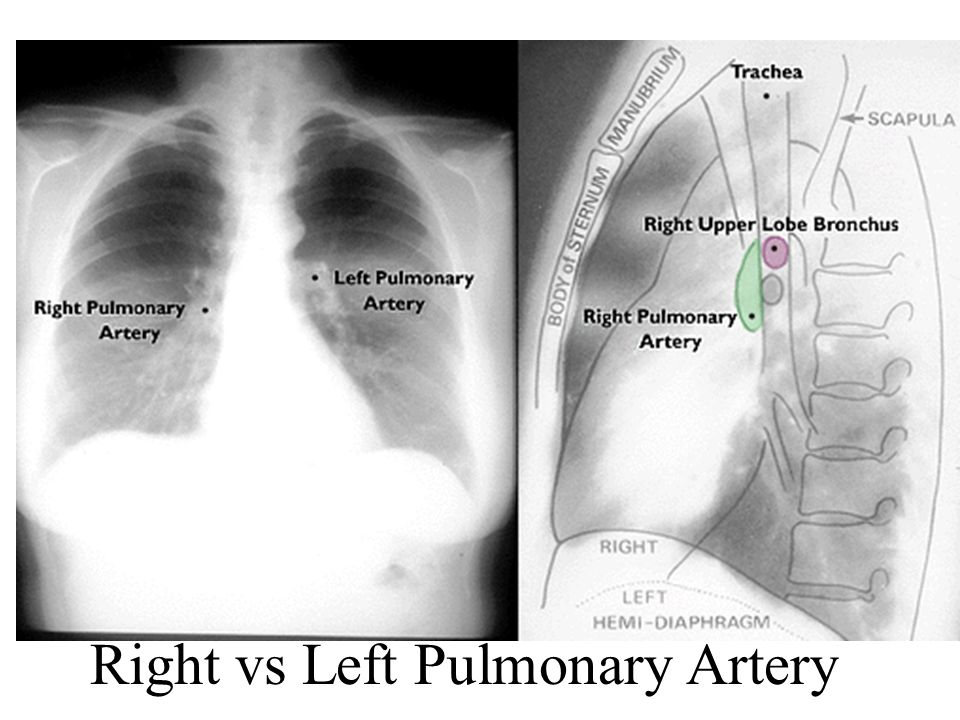 Right vs Left Pulmonary Artery