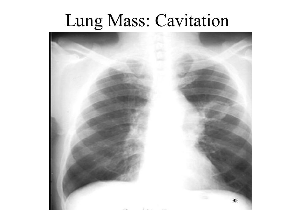 Lung Mass: Cavitation