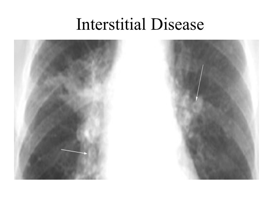 Interstitial Disease