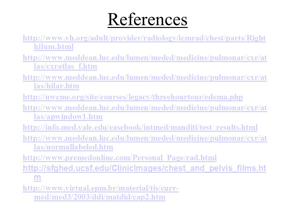 References http://www.vh.org/adult/provider/radiology/icmrad/chest/parts/Righthilum.html.