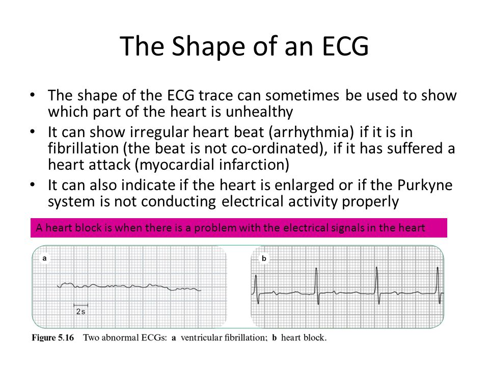 The Shape of an ECG The shape of the ECG trace can sometimes be used to show which part of the heart is unhealthy.