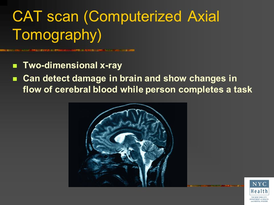 CAT scan (Computerized Axial Tomography)