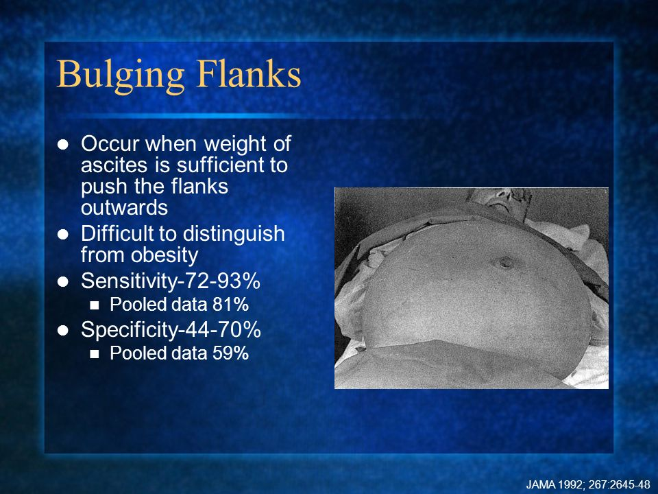 Bulging Flanks Occur when weight of ascites is sufficient to push the flanks outwards. Difficult to distinguish from obesity.