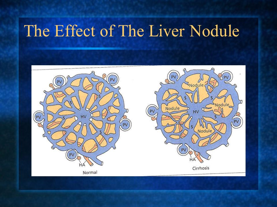 The Effect of The Liver Nodule