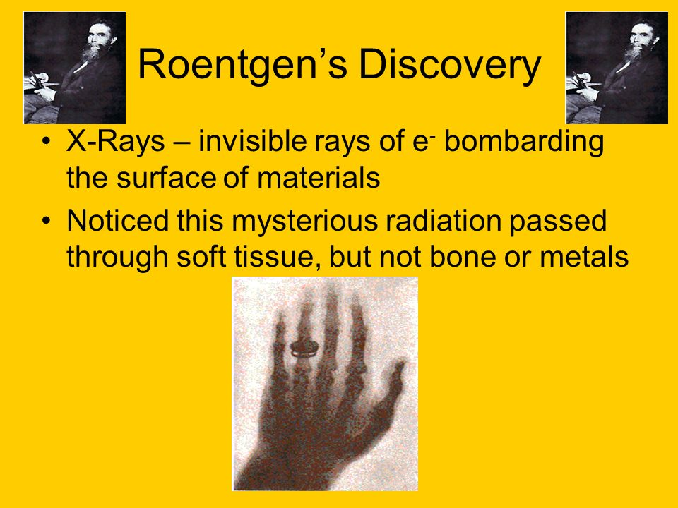 Roentgen's Discovery X-Rays – invisible rays of e- bombarding the surface of materials.