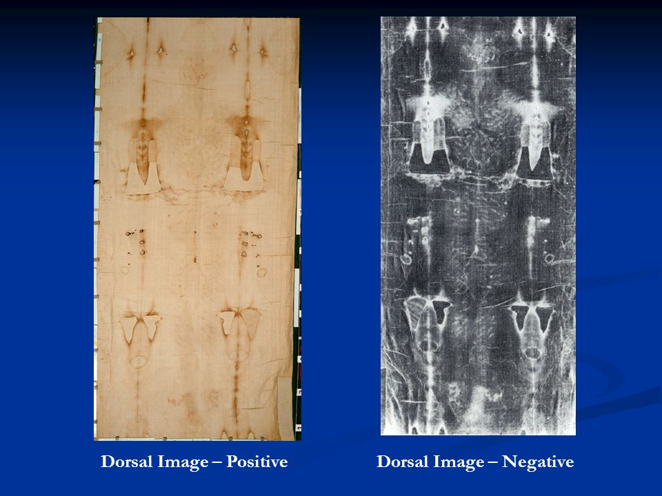 Dorsal Image – Positive