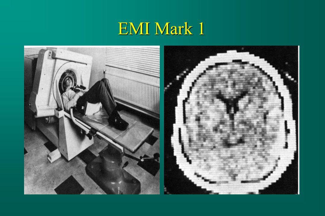 EMI Mark 1
