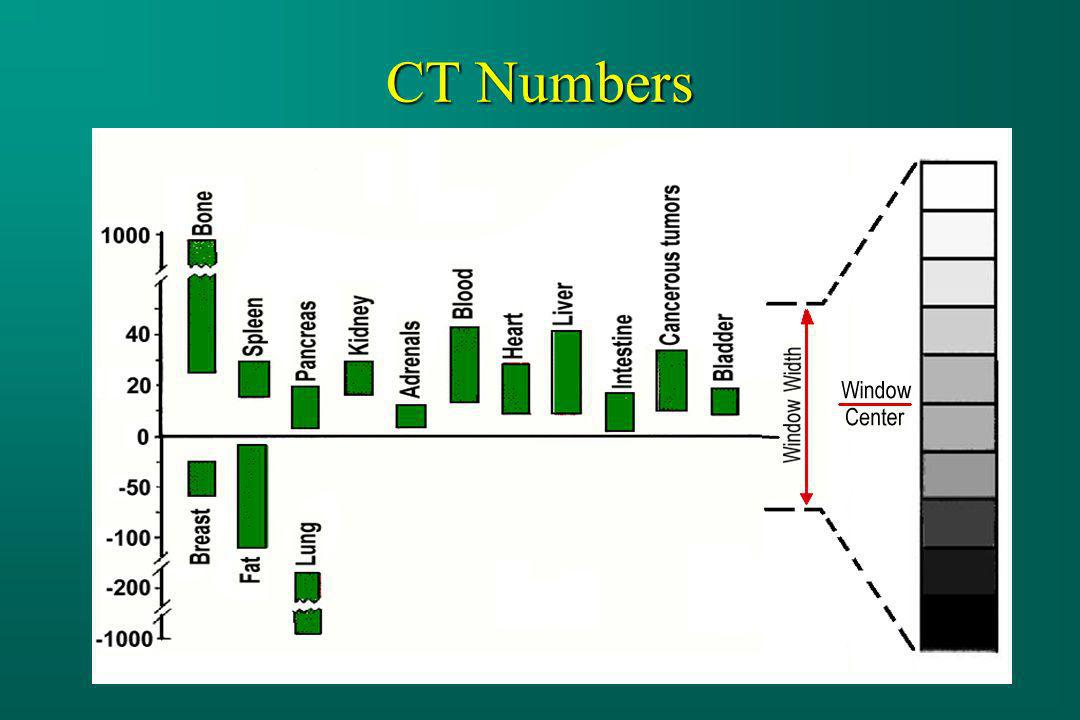 CT Numbers