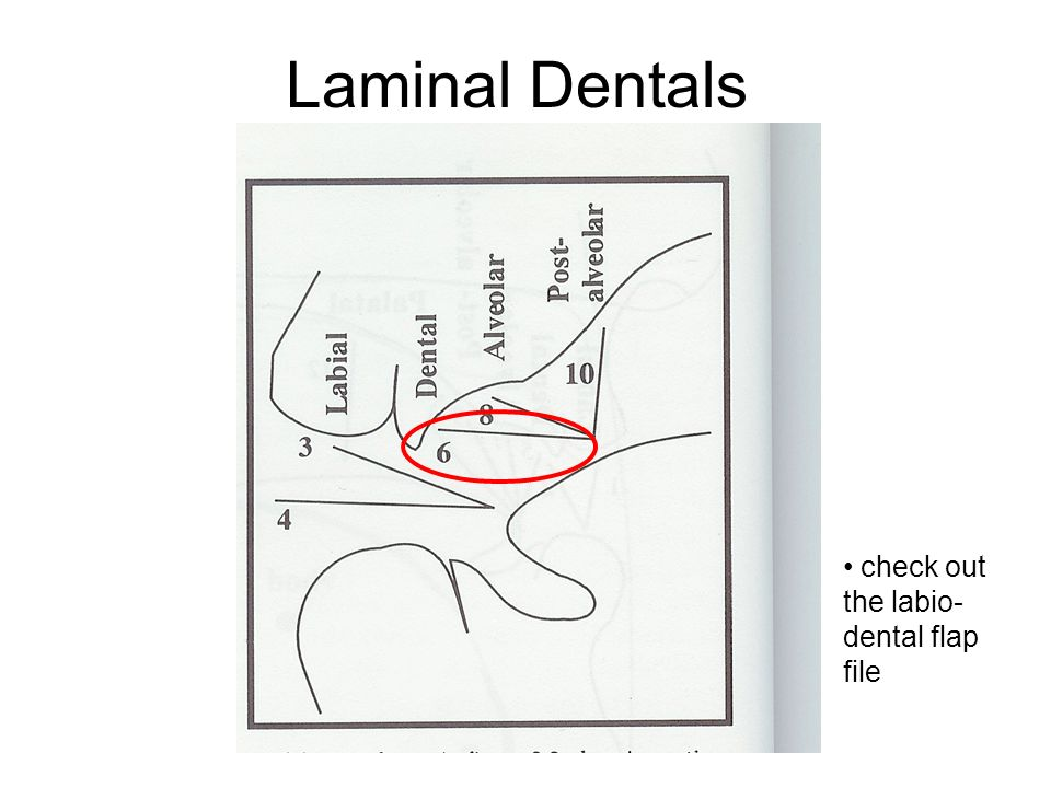 Laminal Dentals check out the labio-dental flap file