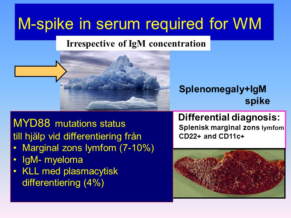 M-spike in serum required for WM