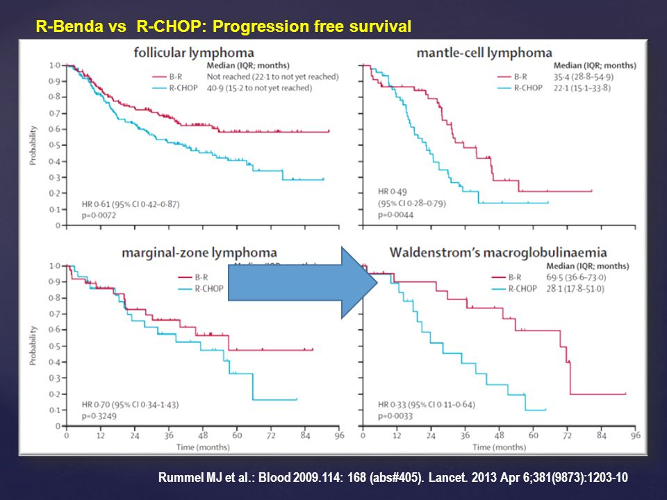 R-Benda vs R-CHOP: Progression free survival