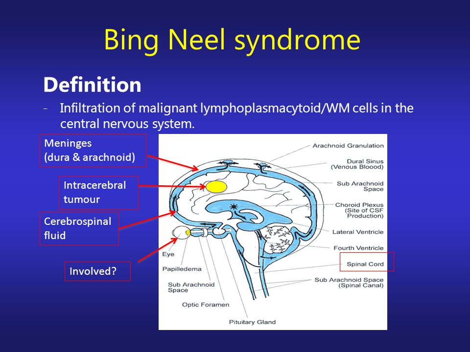 Bing Neel syndrome Definition