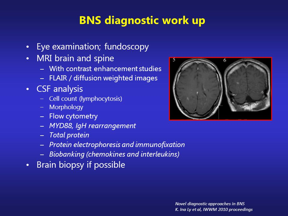 BNS diagnostic work up Eye examination; fundoscopy MRI brain and spine