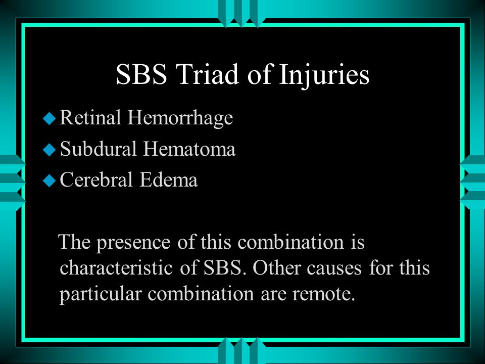SBS Triad of Injuries Retinal Hemorrhage Subdural Hematoma