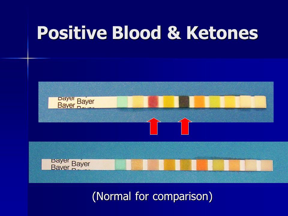 Positive Blood & Ketones