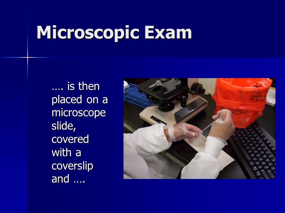 Microscopic Exam ….