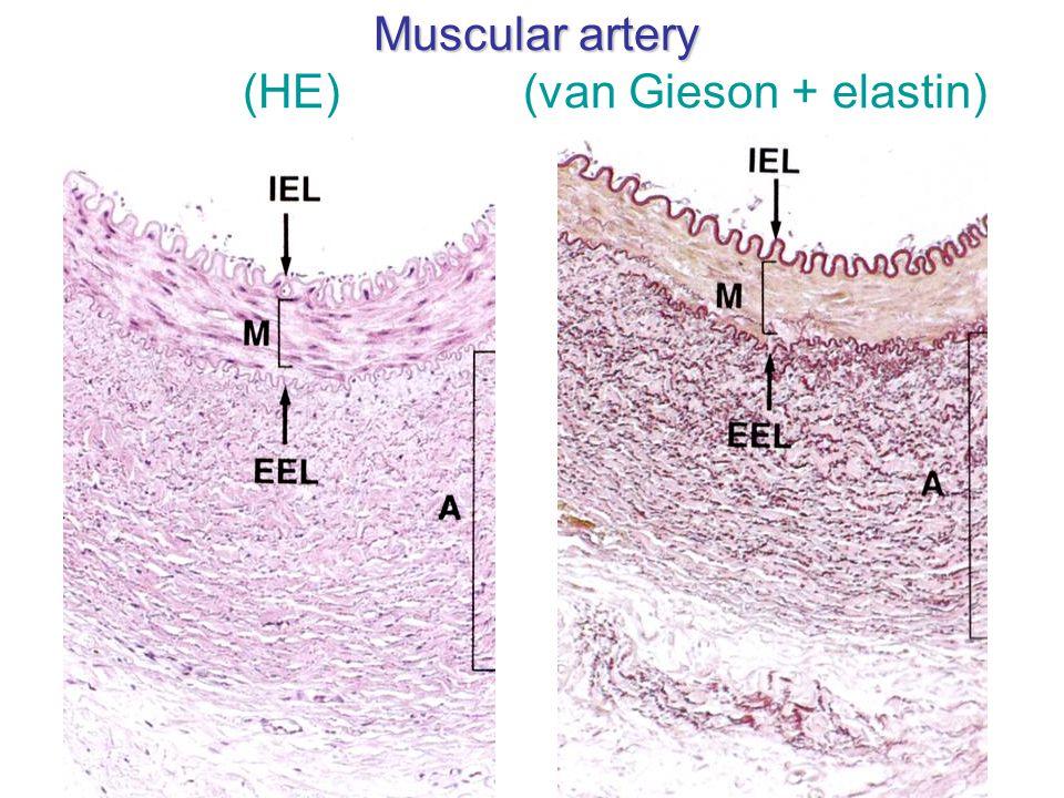 Muscular artery (HE) (van Gieson + elastin)