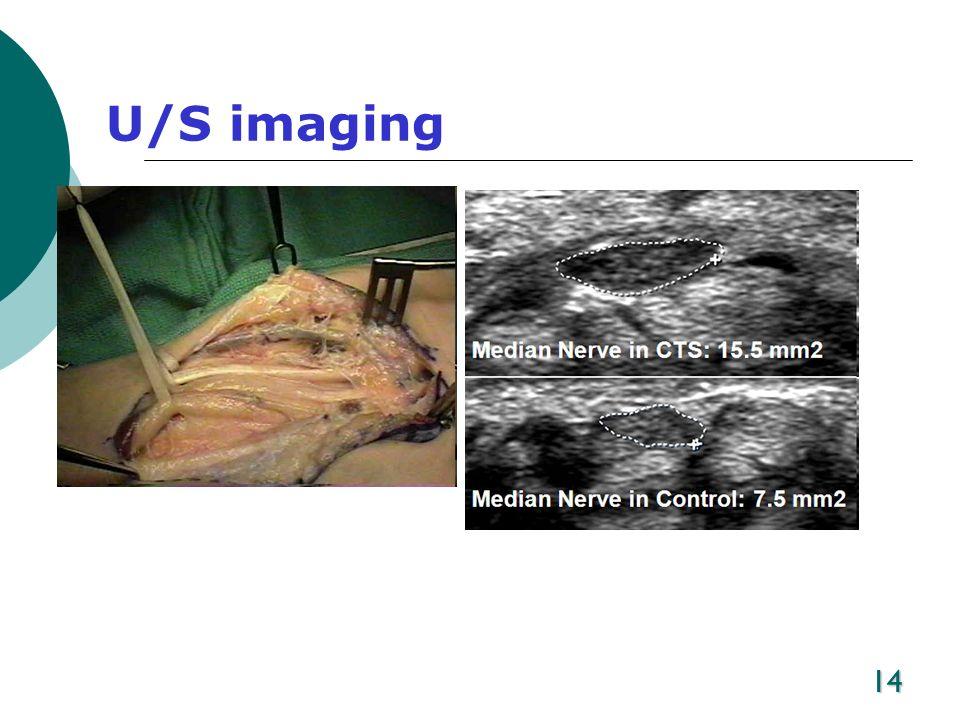 U/S imaging