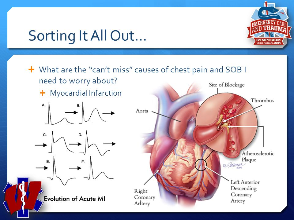 Sorting It All Out… What are the can't miss causes of chest pain and SOB I need to worry about Myocardial Infarction.