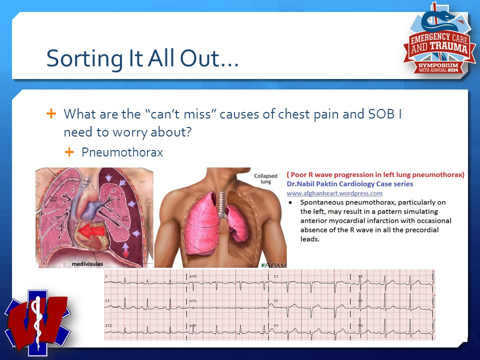 Sorting It All Out… What are the can't miss causes of chest pain and SOB I need to worry about Pneumothorax.